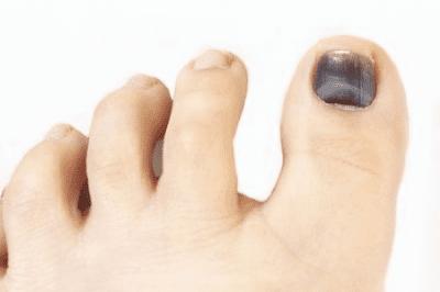 Toenail on small dot black Black Spots