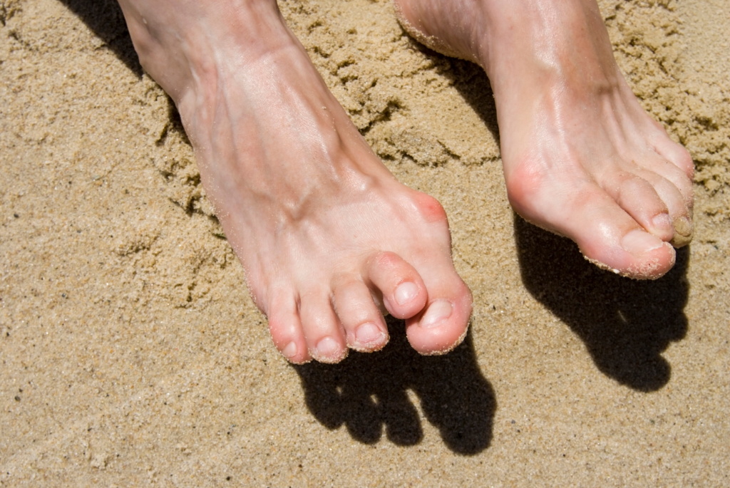 What to Know About Bunions