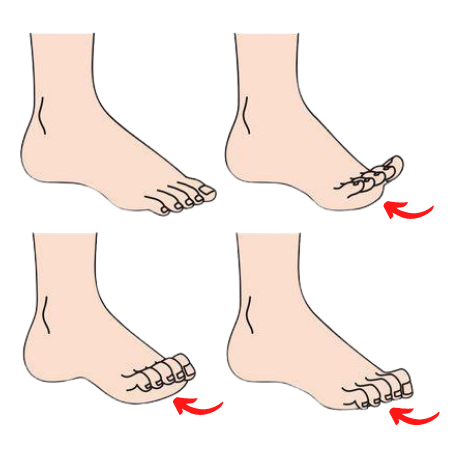 Up why do toes curl Crooked Toes: