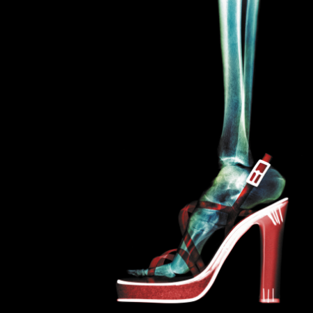 xray image of how high heels affect the foot